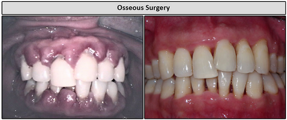 Osseous Surgery