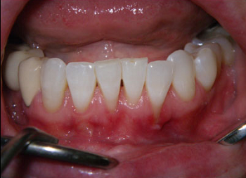 Pinhole Periodontal Disease Treatment